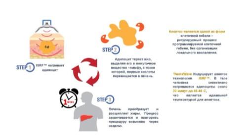 est-nelzya-hudet-kosmetologicheskie-protsedury-dlya-tela-kotorye-dejstvitelno-rabotayut-5